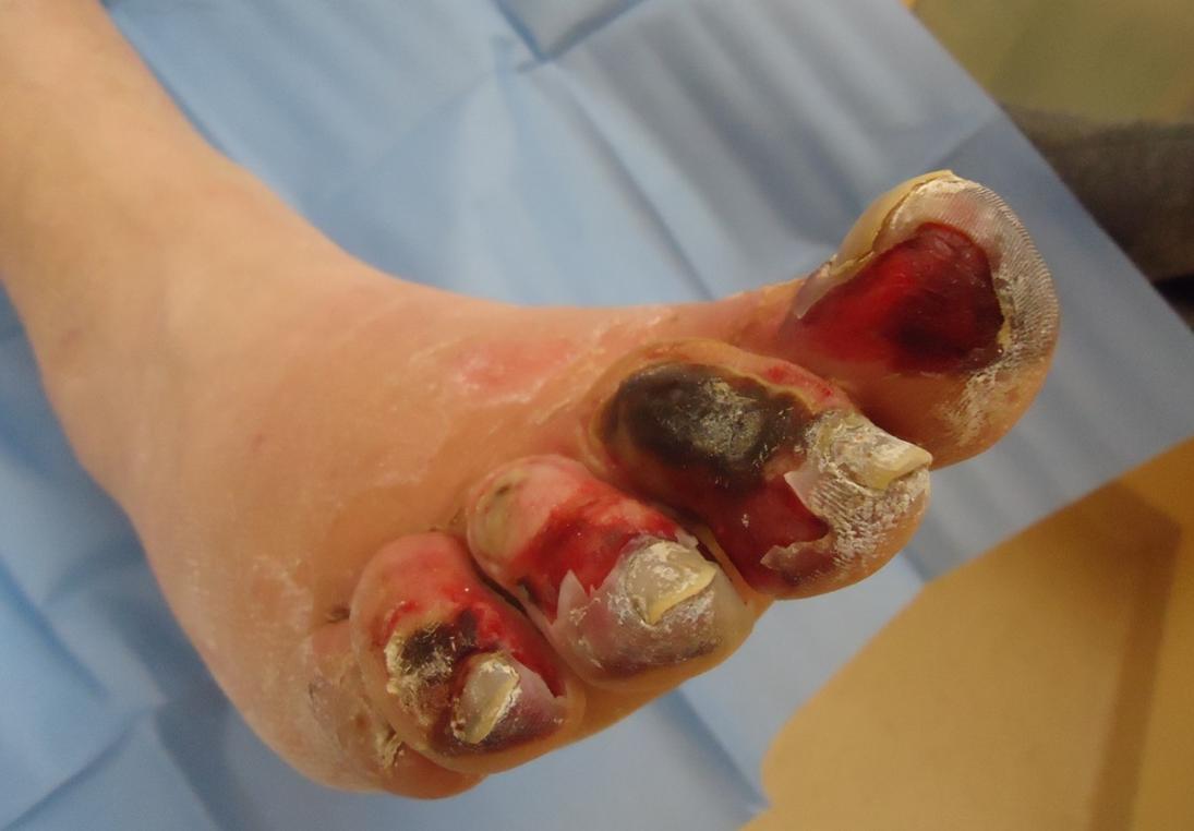 Ustione termica in piede diabetico for Piede quadrato di 20x20